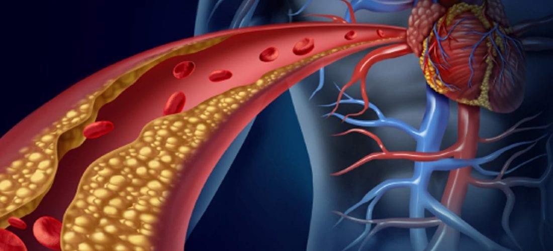 Hipercholesterolemia