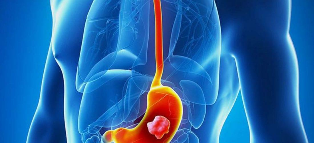 Rak żołądka