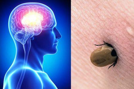 Kleszczowe zapalenie mózgu