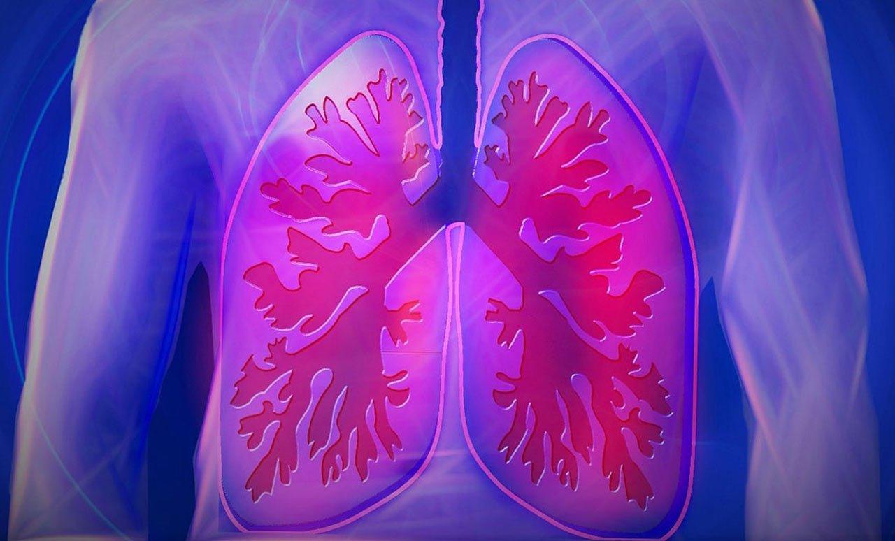 Przewlekła obturacyjna choroba płuc (P0ChP)