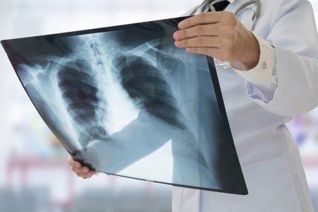 Zapalenie opłucnej