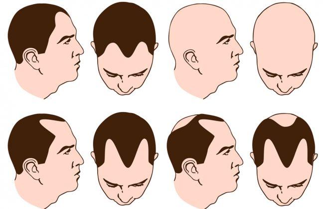Etapy łysienia męskiego - zasady pielęgnacji włosów