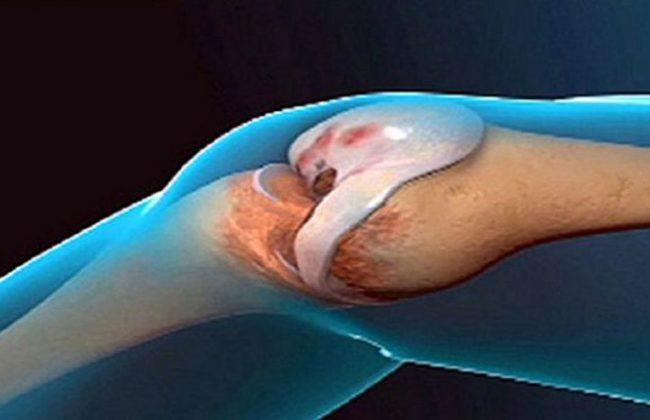 Znakomity przepis na odnowę stawów, który zapobiega zapaleniu