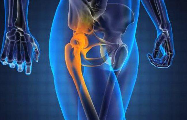 Prosta metoda na ból biodra