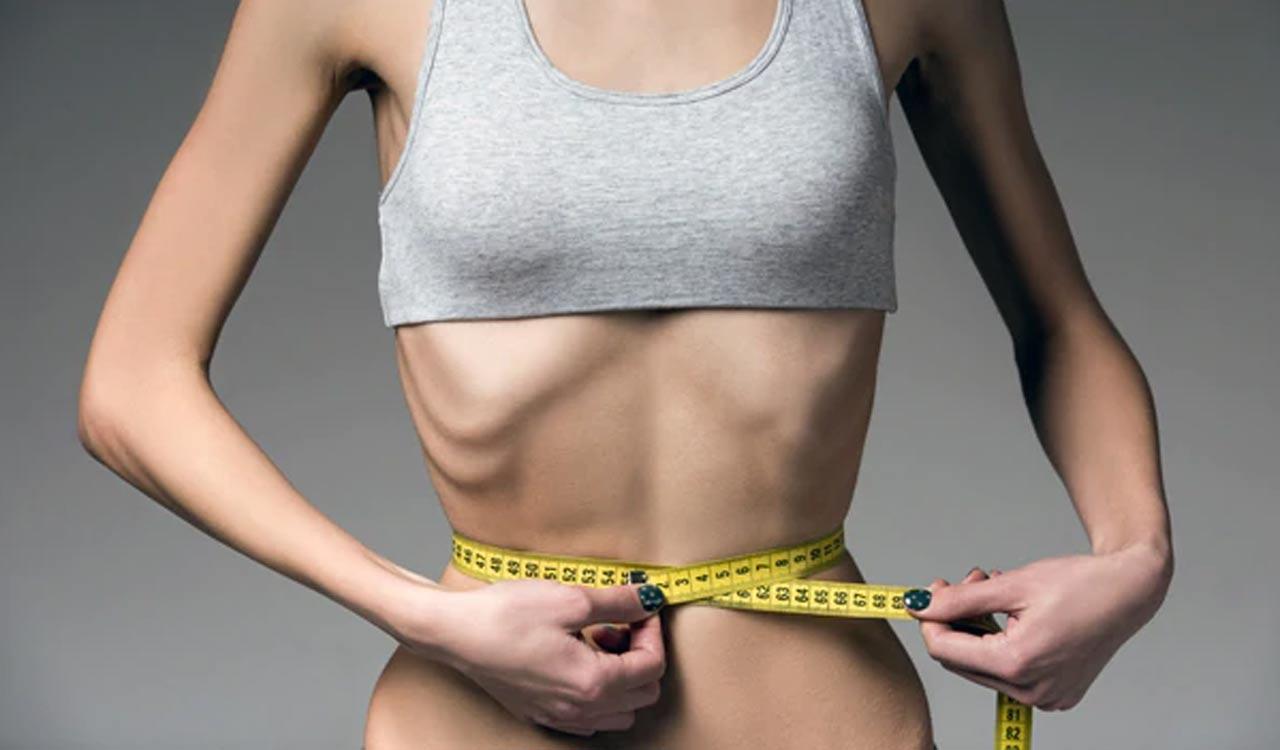 Anoreksja (Jadłowstręt psychiczny)