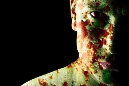 8 strasznych i dziwnych chorób