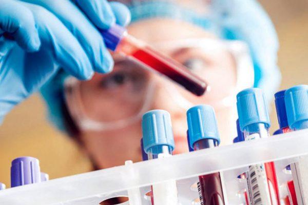 Badania krwi - Morfologia