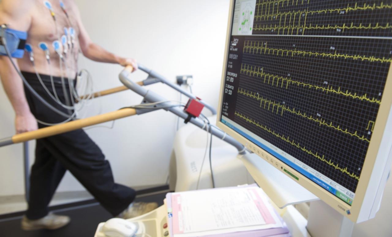 EKG wysiłkowe (Próba wysiłkowa)