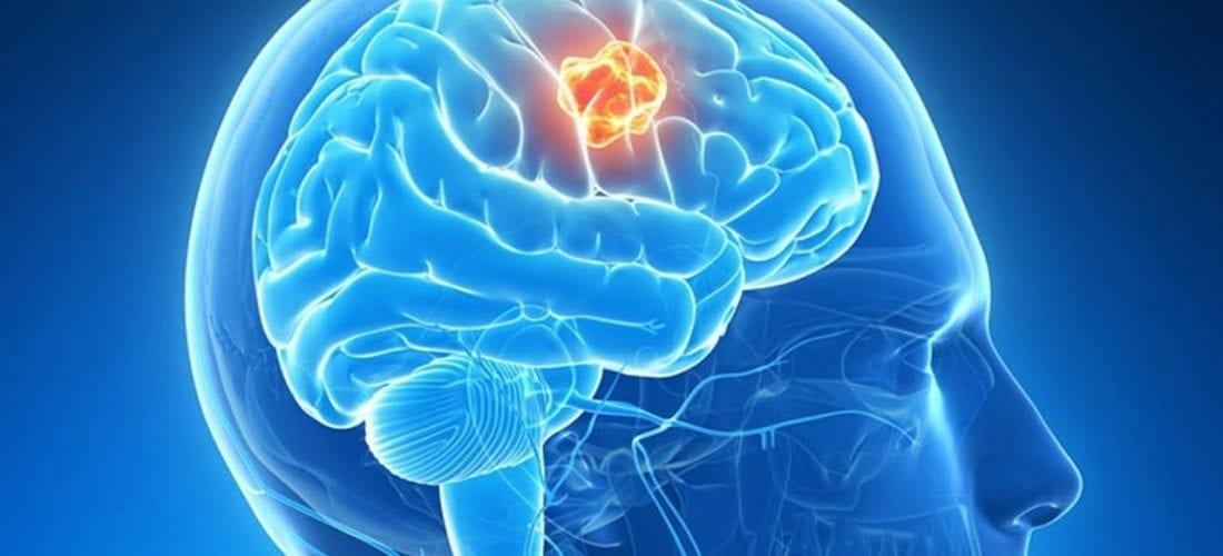 Rak mózgu (Guz)