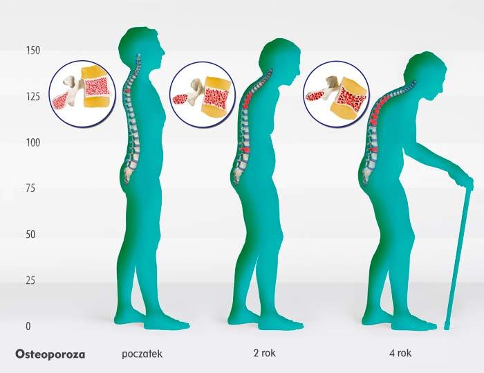 Fazy osteoporozy