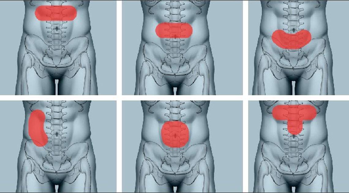 Jak zlokalizować ból brzucha
