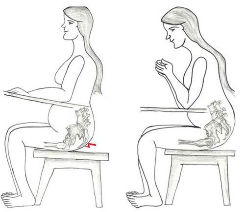 przyczyny mięśnia gruszkowatego