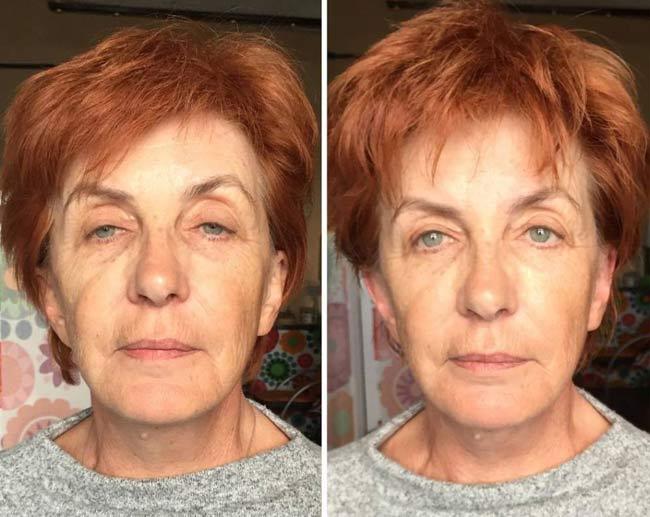 Wpływ bawełnianego masażu twarzy
