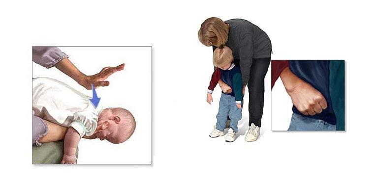 chwyt Heimlicha dziecko
