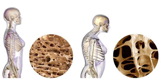 Osteoporoza jak rozpoznać