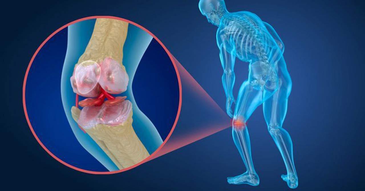 bóle stawów, kolan oraz pleców