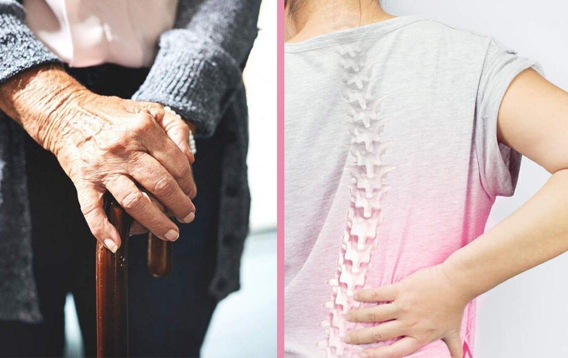 jak rozpoznać osteoporozę