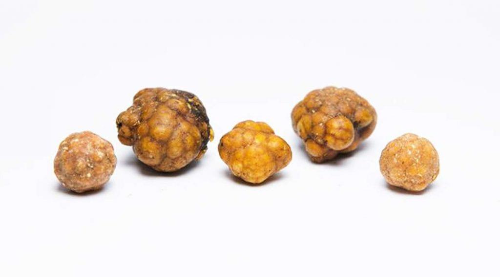 Kamienie żółciowe