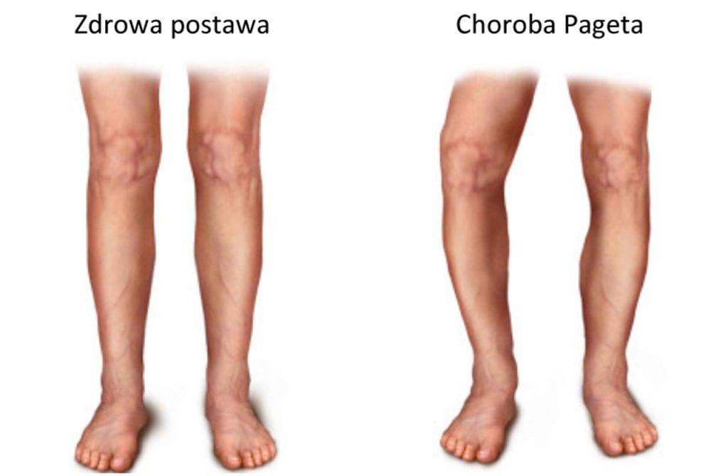 Choroba Pageta