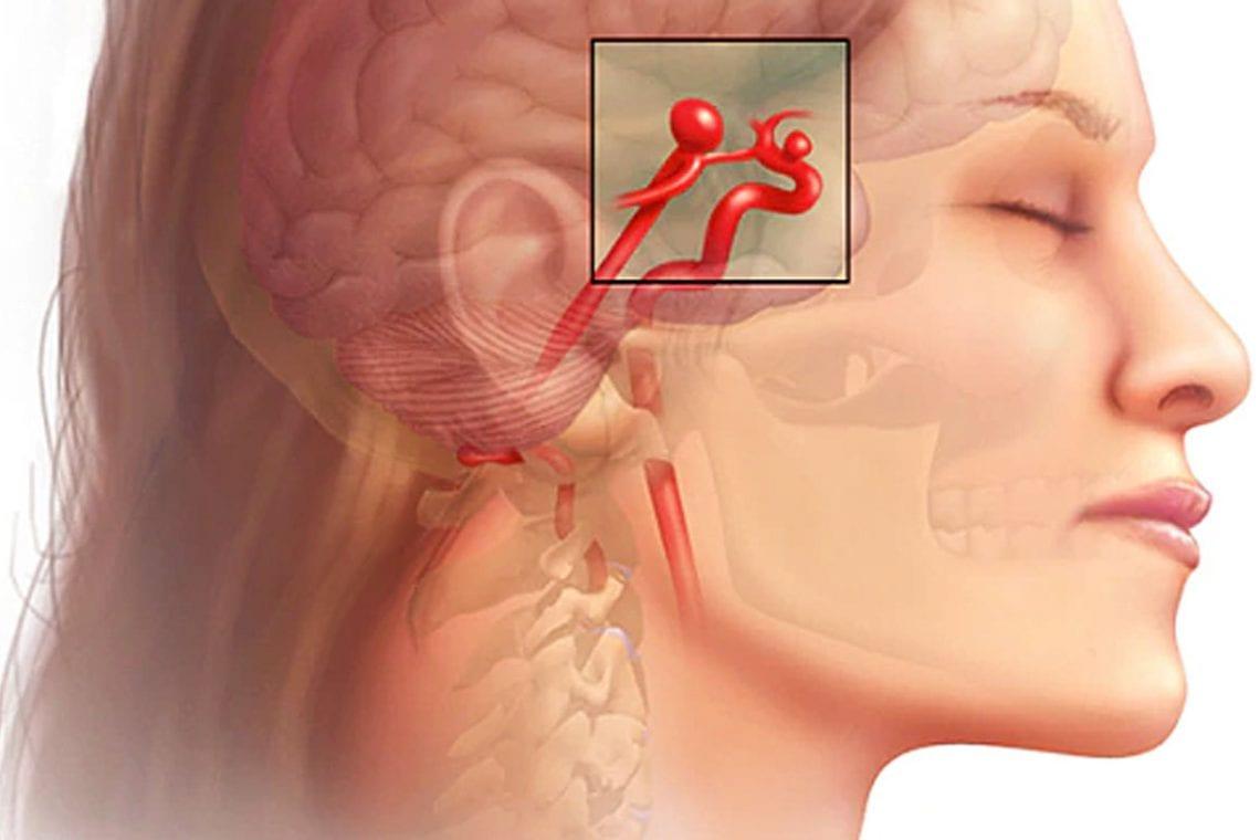 Objawy tętniaka