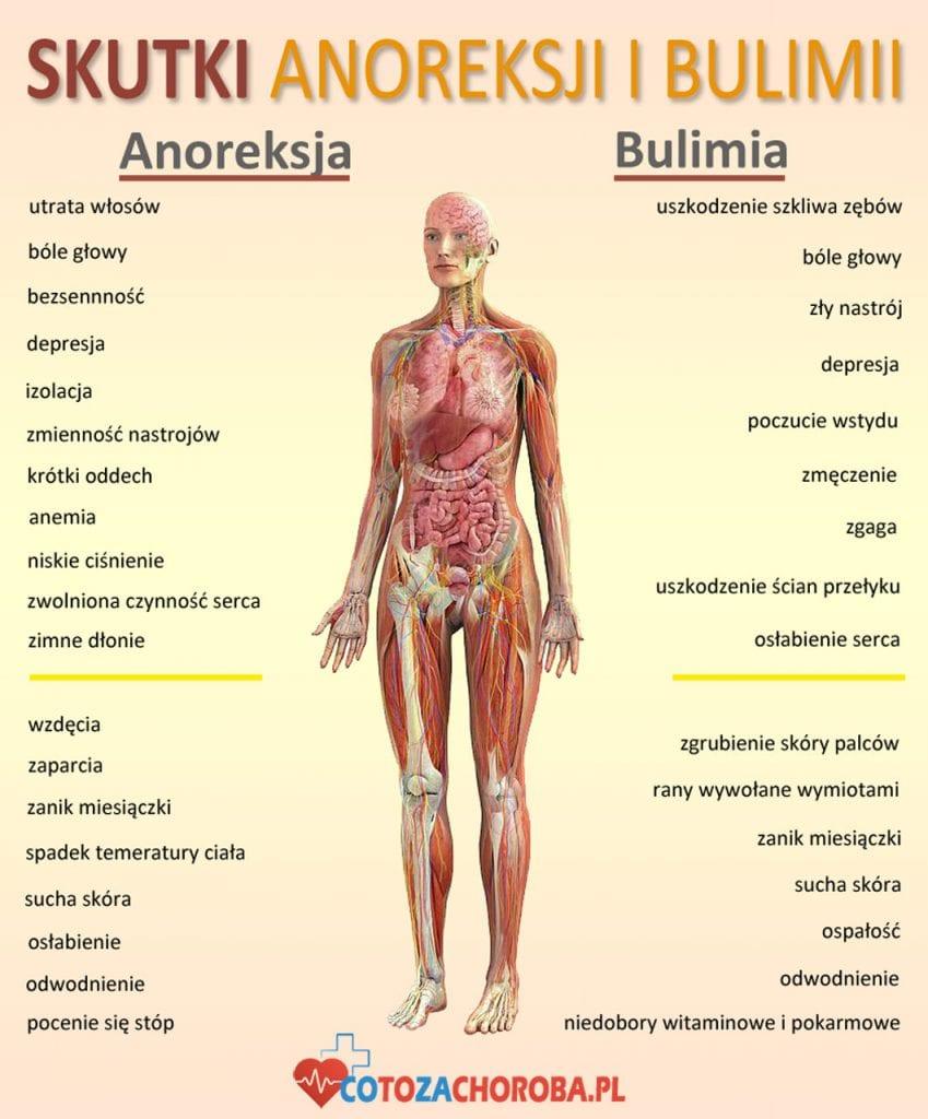 Skutki anoreksji i bulimii