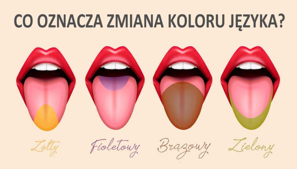 Co oznacza kolor języka?