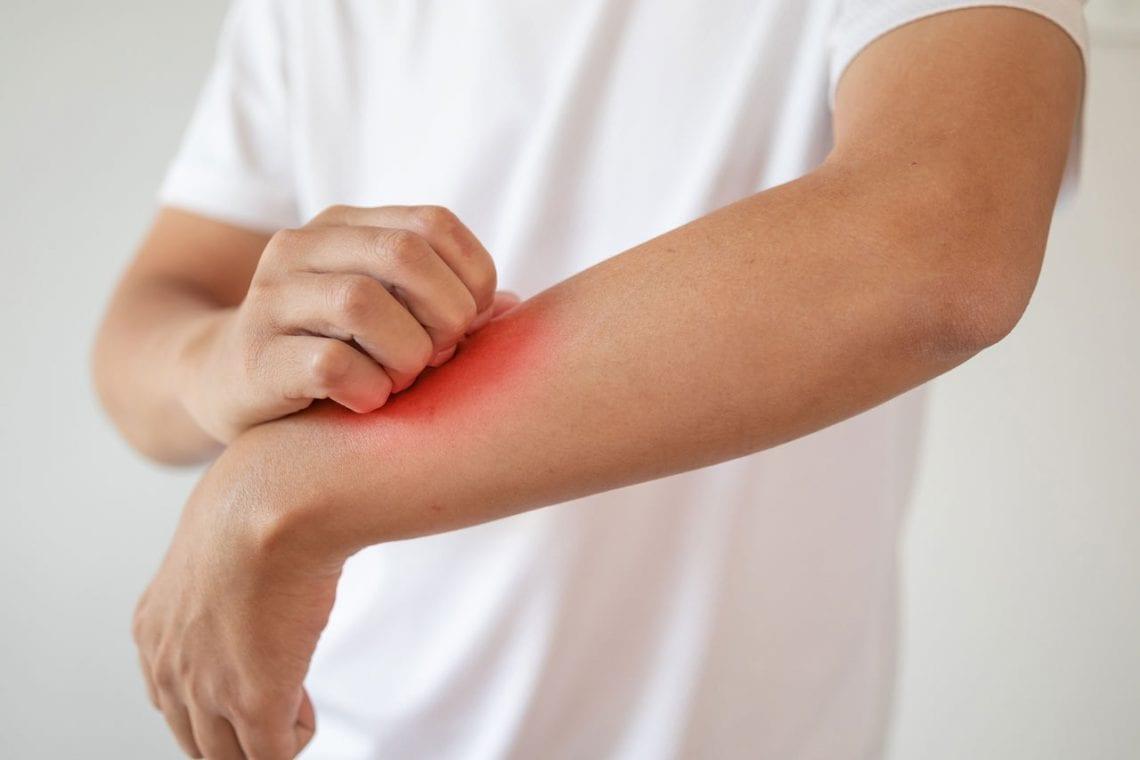 Czy można wyleczyć się z atopowego zapalenia skóry