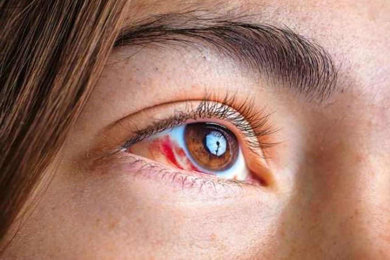 Nowotwory układu wzrokowego