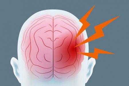 Udar mózgu - zaburzenia