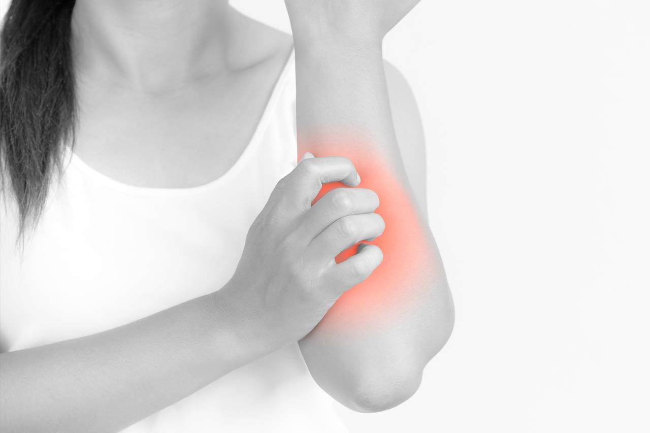 Choroby alergiczne skóry