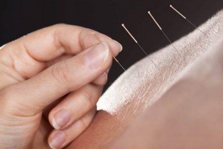 Medycyna chińska - akupresura, akupunktura