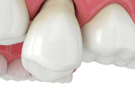 Odsłonięte szyjki zębowe