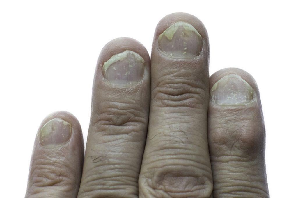 Łuszczyca na paznokciach