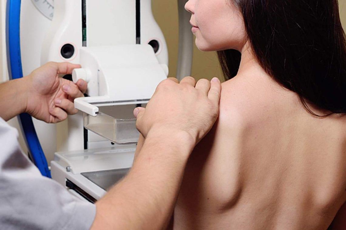 Mammografia, dlaczego warto się regularnie badać?