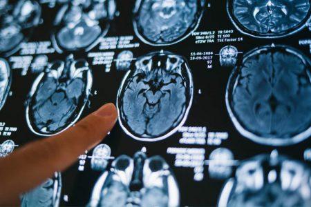 Rezonans magnetyczny sprawdź kiedy jak i gdzie należy go wykonać