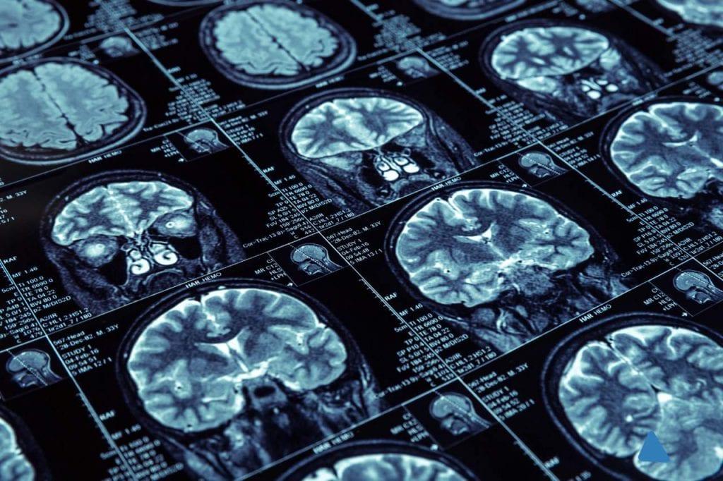 Na czym polega badanie rezonansem magnetycznym?