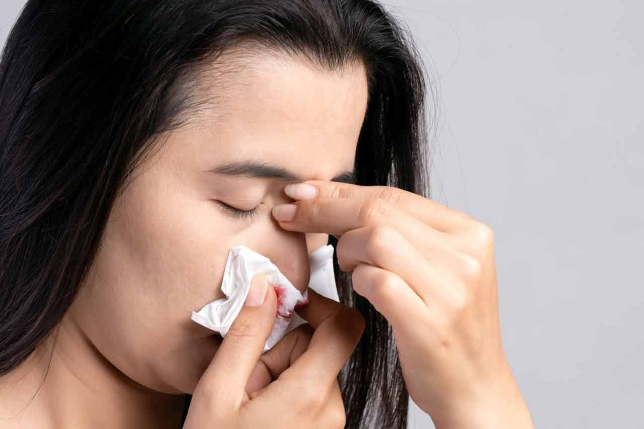 Jak zatrzymać krwotok z nosa?