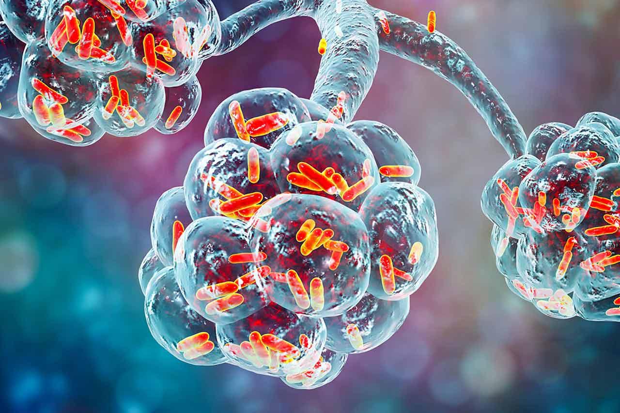 Bakteria Mycoplasma w pęcherzykach płucnych
