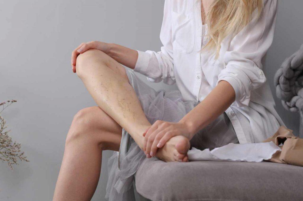 Jak rozpoznać żylaki nóg?