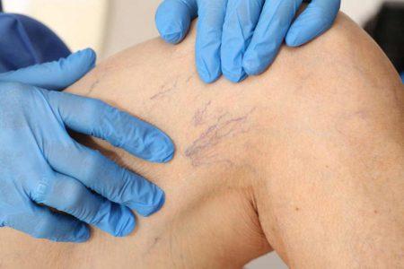 Jakie są objawy żylaków nóg i jak im zapobiegać?