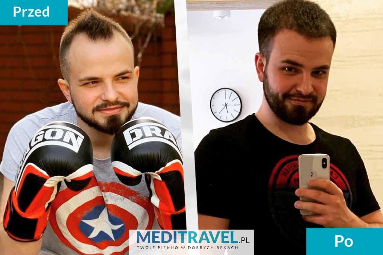 Przeszczep włosów Polska czy Turcja
