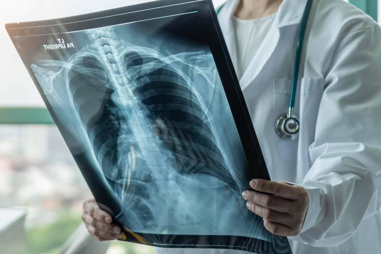 Przewlekła choroba obturacyjna płuc